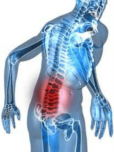 腰痛のイメージ画像2